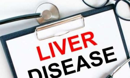 Signs and Symptoms of Liver Disease